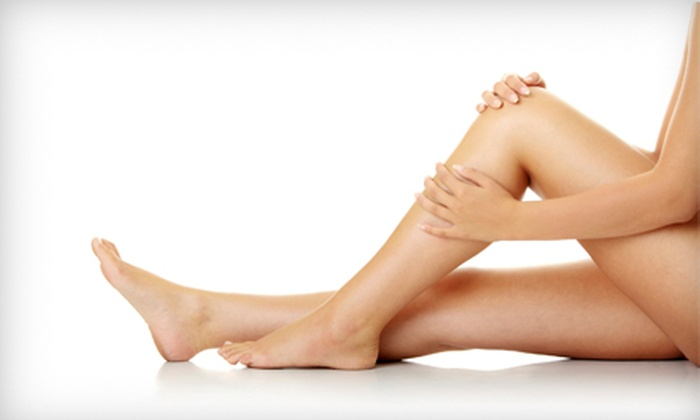 Essential Aesthetics - Danville: $129 for Two Spider-Vein Treatments at Essential Aesthetics in Danville ($500 Value)