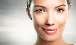 Fusion Med Spa: One or Two Facial Resurfacing Treatments, Peels, or Microdermabrasions at Fusion Med Spa (Up to 84% Off)