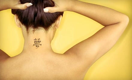 1 Laser Tattoo-Removal Treatment (a $125 value) - Extink Tattoo Removal in Whitsett