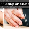 59% Off Acupuncture at Valley Ranch