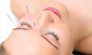 City Acupuncture: One or Two Basic Acupuncture Sessions at City Acupuncture (Up to 54% Off)