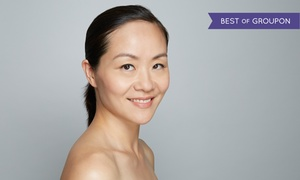Botox & Juvederm Doctor: $599 for One Syringe of Bellafill at Botox & Juvederm Doctor ($1,200 Value)