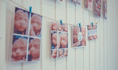 Sesión de ecografía 5D a elegir con fotos y canastilla de regalo en Eco Belly (hasta 29% de descuento)
