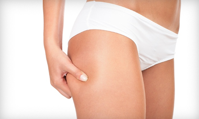 Help For Health - West Springfield: $185 for Three LipoLaser Treatments at Help for Health in Springfield, VA ($750 Value)