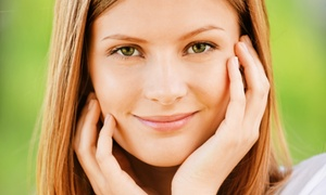 The Face Place: Four, Six, or Eight Microdermabrasions at The Face Place (Up to 74% Off)
