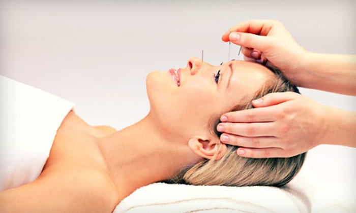 Marin L. Kokin L.Ac. - Sherman Oaks: One or Two Acupuncture Treatments with Initial Consultation from Marin L. Kokin L.Ac. in Sherman Oaks (Up to 57% Off)