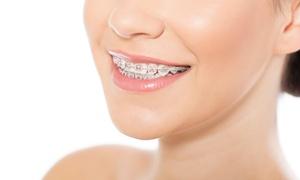 Dent4u: 1 łuk stałego stalowego aparatu ortodontycznego za 549 zł i więcej w Dent4u