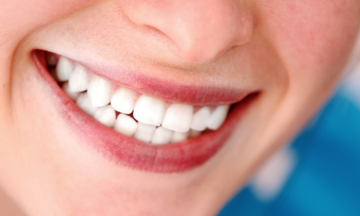 Cara Bella Studio - Cara Bella Studio: $99 for a 45-Minute Laser Teeth-Whitening Treatment at Cara Bella Studio ($249 Value)