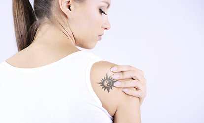 One, Three or Six Sessions of Laser Tattoo Removal at Dead 2 Rights Tattoo Studio