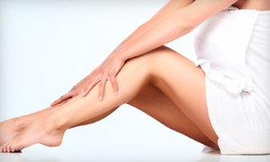 Advanced Vein Center: One Sclerotherapy Treatments or Two Laser Spider-Vein Treatments at Advanced Vein Center (Up to 84% Off)