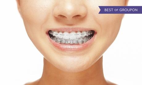 Ortodoncia con brackets metálicos o estéticos de porcelana en ambas arcadas con revisión desde 199 € en Integral Odonto