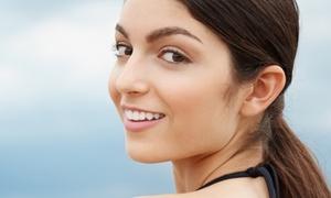 Praxis für ästhetische Medizin und Naturheilkunde: Fadenlifting mit 5 oder 10 Fäden für 1 Zone nach Wahl im Kosmetikstudio AZALEE (59% sparen*)