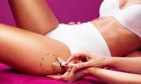 6, 10 o 12 sesiones de mesoterapia inyectada desde 89 €  en Body láser Centro Médico-Estético