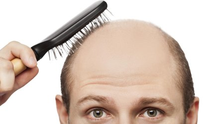 55% Off Hair Restoration - Other