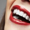 Limpieza bucal con curetaje