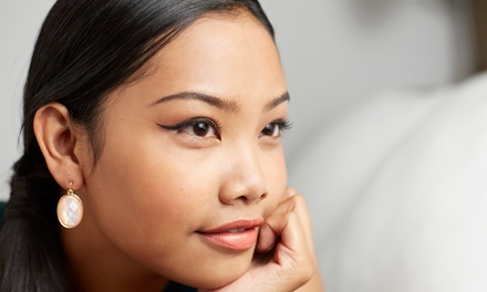 $170 for 20 Units of Botox at Total Med Solutions (Up to $400 Value)