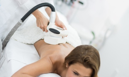 3, 6 o 9 sesiones de tratamiento reductor con envolturas en Centro Estética Sapphiro (hasta 77% de descuento)