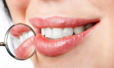 Pulizia denti e sbiancamento led a 19,90€euro