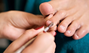 Kentner Podiatry: Medical-Grade Pedicure or Two or Four Laser Foot-Fungus Treatments at Kentner Podiatry (Up to 58% Off)