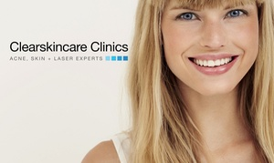 Clearskincare Clinics: $79 Acne Treatment & Extraction Package, 43 Locations at Clearskincare Clinics (Up to $249 Value)