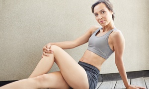 Virginia Vein Care: One Sclerotherapy Treatment at Virginia Vein Care ($375 Value)