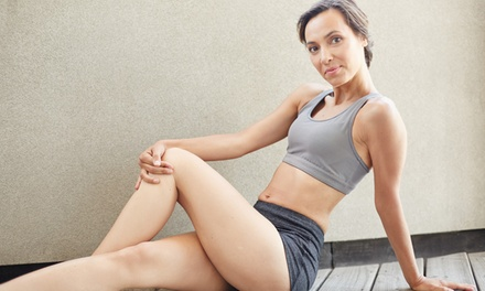 One Sclerotherapy Treatment at Virginia Vein Care ($375 Value)