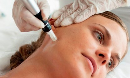 image for Microneedling at Tajmeel Clinic (48% Off)