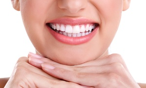 Limpieza bucal por 9,90 € y con blanqueamiento dental led por 39,90 € en Plaza de España