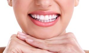 Dent Amb Dent valencia: Limpieza bucal por 9,90 € y con blanqueamiento dental led por 39,90 € en Plaza de España