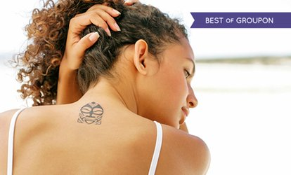 Laser Tattoo Removal: Two or Four Sessions from £32 at Simply Slim
