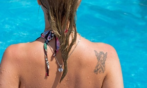 Jackalope Tattoo Removal: Two Laser Tattoo-Removal Treatments at jackalope tattoo supply and laser removal (67% Off)