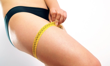 Three, Five, or Eight Laser Lipo Treatments at Naples Weight Loss & Wellbeing (Up to 81% Off)