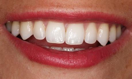 1 o 2 sesiones de limpieza bucal con opción a blanqueamiento en Clínica Orgaz Dental (hasta 82% de descuento)