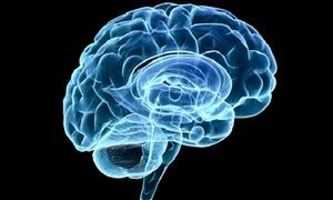 LearningRX: $99 for Cognitive Skills Assessment and More at LearningRX ($359 Value)