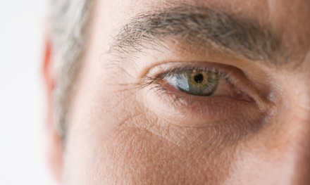 $1,599 for an Upper- or Lower-Eyelid Lift on Both Eyes at Byer Ophthalmic Associates ($4,000 Value)