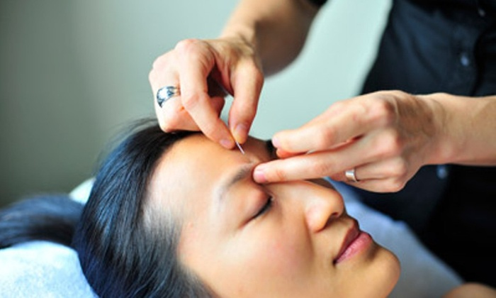 Neuro Wellness - Windsor: Up to 56% Off Acupuncture Face-Lift at Neuro Wellness