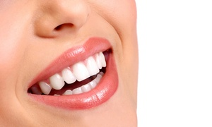 Pearl Dental Clinic: Zoom Teeth Whitening Treatment with Optional Scale, Polish and Zoom Home Teeth Whitening Kits at Pearl Dental Clinic*