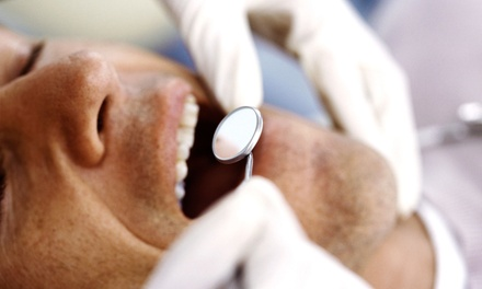 South Pasadena Mission Dental coupon and deal