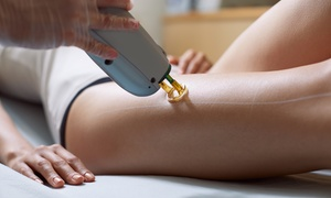 Skinbydesign Laser Clinic: Two or Four Sessions of Laser Hair Removal for Small, Medium, or Large Area at Skinbydesign (Up to 56% Off)