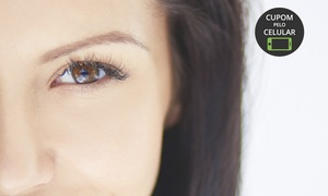 Della Luka Micropigmentação e Estética: Della Luka Spa Urbano – São José: 1, 3 ou 5 sessões de laser para despigmentação de sobrancelhas