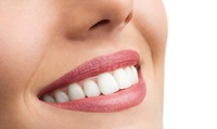 2x kosmetisches Zahn-Bleachingfür 1 Person bei Casablanca Smile Stuttgart (46% sparen*)