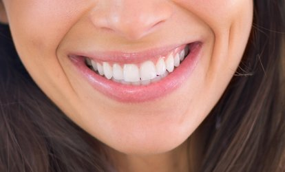 Dental Exam with Scale and Polish and two Digital Xrays at Best Health Clinics (57% Off)