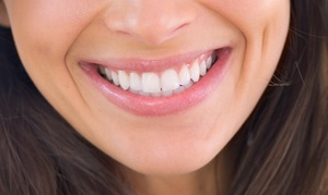 Dental Perfection Littleover: Two, Four or Six Dental Veneers at Dental Perfection Littleover