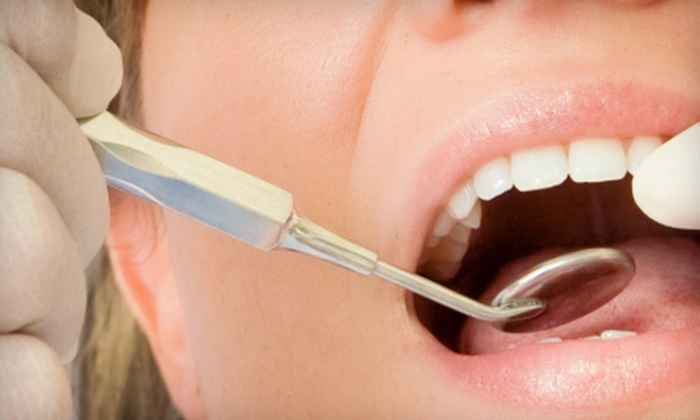 Edent - Pacific Beach: $59 for a Dental Checkup with Exam, X-rays, and Cleaning at Edent ($272 Value)