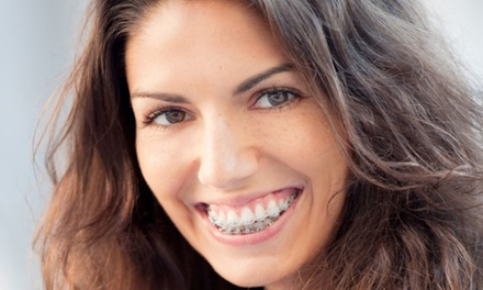 Clear Braces for One or Two Arches with Fixed Retainers at iDental (Up to 67% Off)