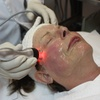 Up to 55% Off Radio Frequency Skin Tightening
