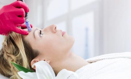 1 o 3 sesiones facial o corporal de tratamiento regenerador con Dermapen y masaje circulatorio desde 39,95 € en CC Láser