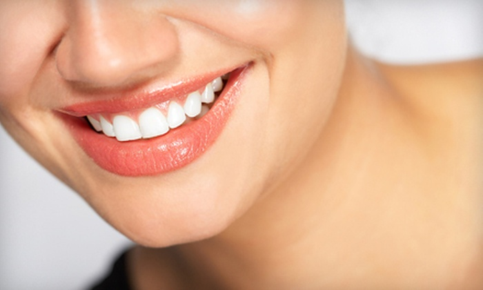 A to Z Family & Cosmetic Dentistry - Country Greene Townhomes: $89 for In-Office Opalescence Boost Teeth Whitening or Custom Take-Home Trays at A to Z Family & Cosmetic Dentistry in Hurst ($350 Value)