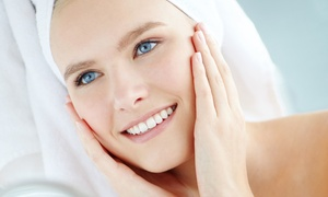 Vena – The Varicose Vein Institute: Chemical Peel, Brightening Facial, or Both at Vena – The Varicose Vein Institute (Up to 61% Off)