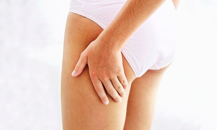 $132 for Sclerotherapy Radio-Frequency Spider-Vein Treatments at Buckeye Vein Care Specialists ($900 Value)
